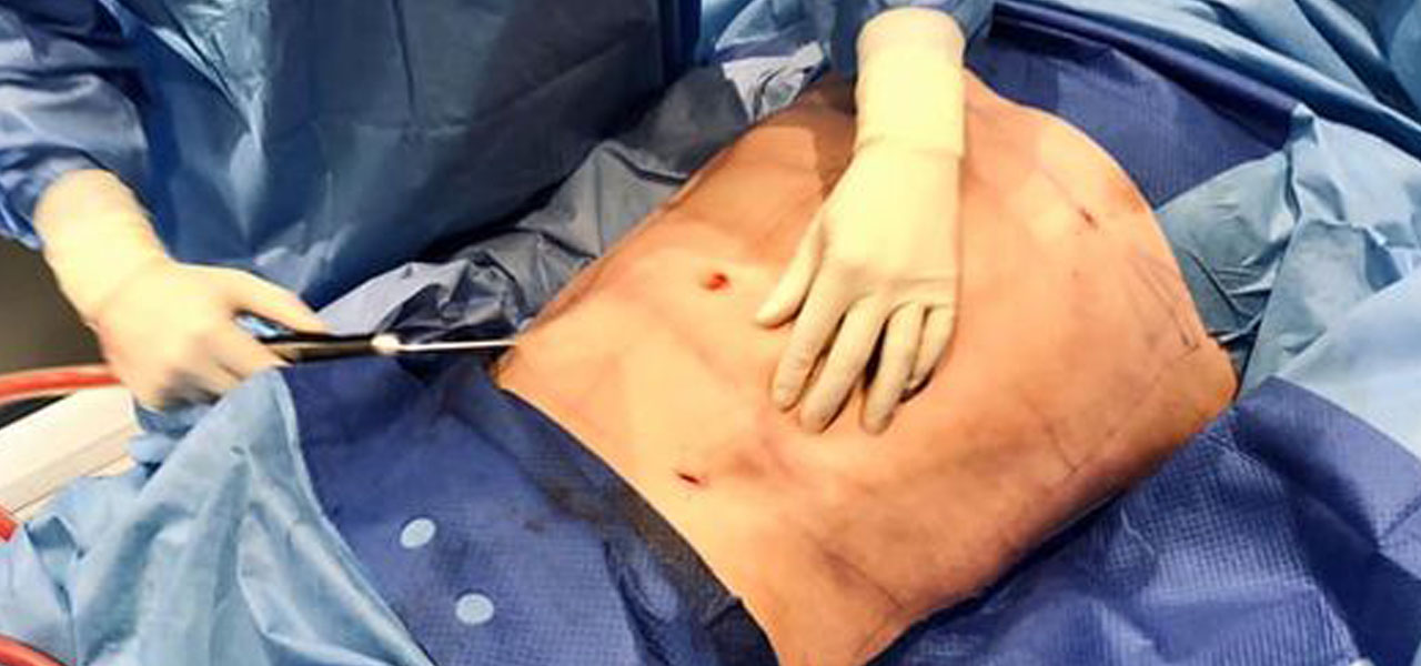 liposukcja-brzucha